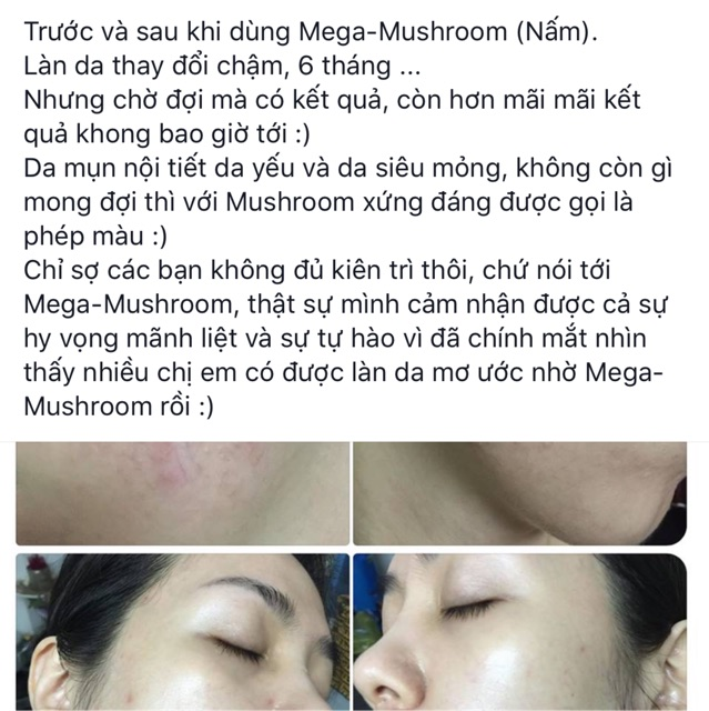 Toner nấm MegaMushroom Skin Relief Soothing Lotion của Or1