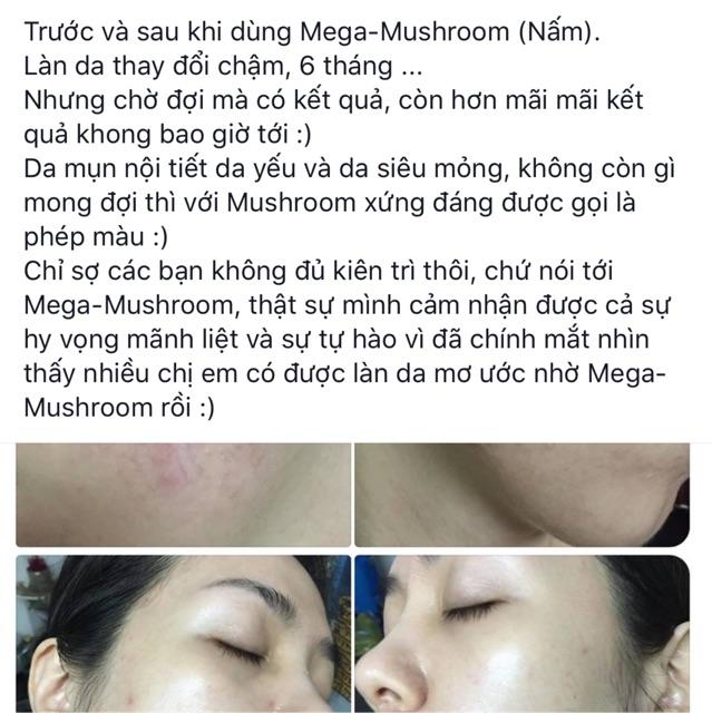 Toner nấm MegaMushroom Skin Relief Soothing Lotion của Origins1
